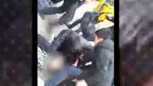 GRAPHIC: Rottweiler Attacks Child