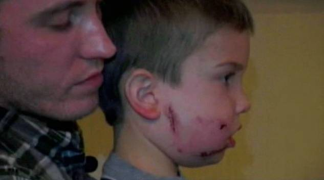 graphic  mountain lion attacks boy in texas