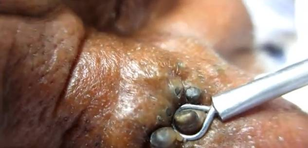 giant blackheads removal - photo #34