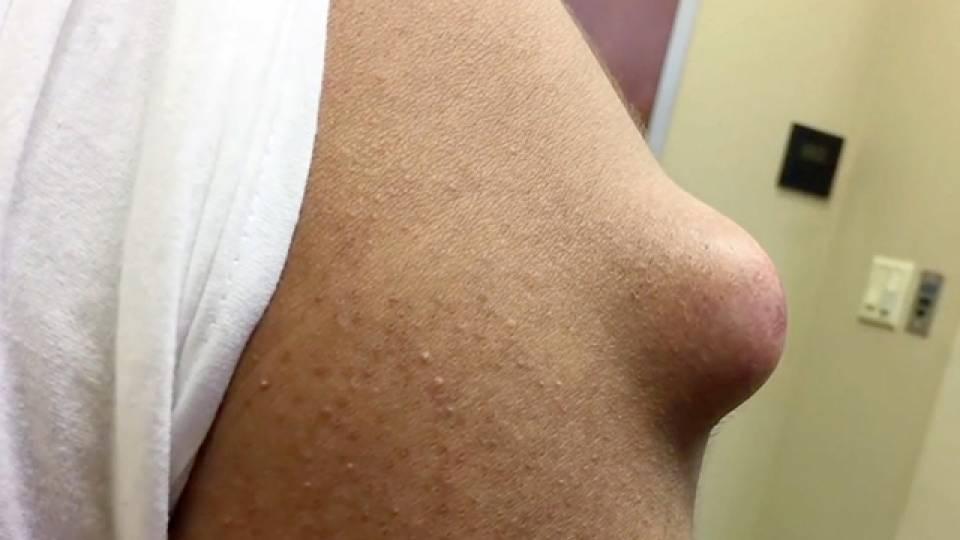 Dr  Pimple Popper Opens Massive Cyst On Patient's Arm | RTM