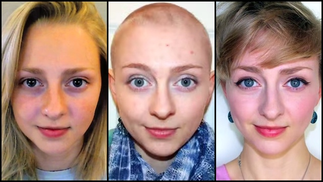 One Girl's Journey Through Hair Loss, Depression, and Self ...