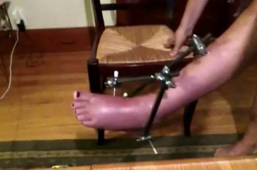 Janice griffith broken leg
